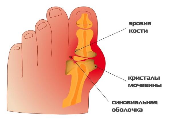 Полезные свойства лапчатки белой, противопоказания, корень для лечения щитовидной железы, настойка, чай