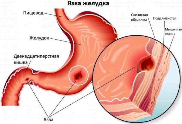 Чеснок натощак по утрам. Польза, вред, как принимать от паразитов, грибка, вирусов, давления, остриц