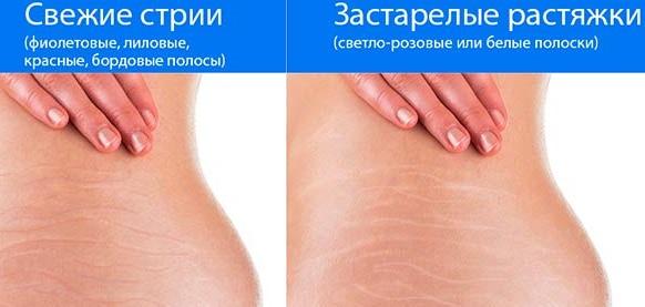 Масло зародышей пшеницы. Свойства и применение внутрь, в косметологии для лица, волос, ресниц, кожи. Цена, отзывы