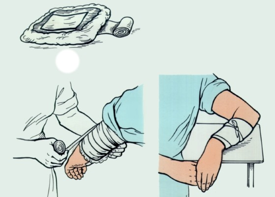 Индийский лук. Лечебные свойства, рецепты применения в народной медицине