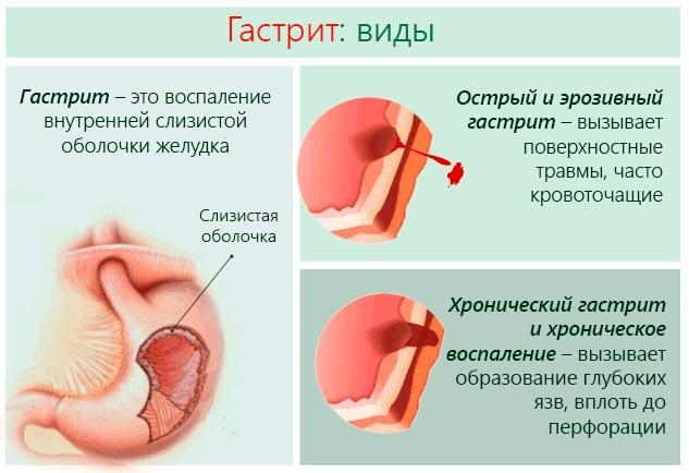 Мята. Полезные свойства, применение в кулинарии, народной медицине, косметологии