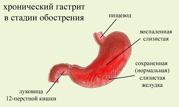 Скумбрия. Польза и вред для организма человека, рецепты приготовления с фото